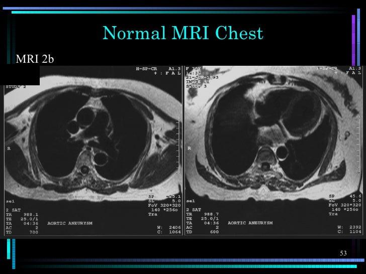 Normal MRI ChestMRI 2b                            53
