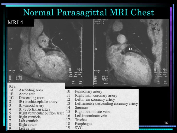 Normal Parasagittal MRI ChestMRI 4                           12        6                                    56