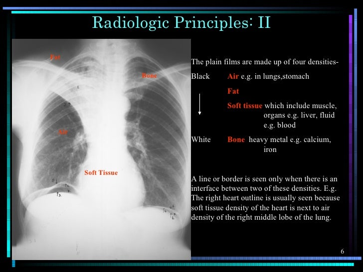 Radiologic Principles: IIFat                             The plain films are made up of four densities-                   ...