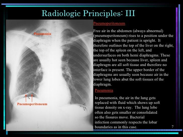 Radiologic Principles: III                          Pneumoperitoneum                          Free air in the abdomen (alw...