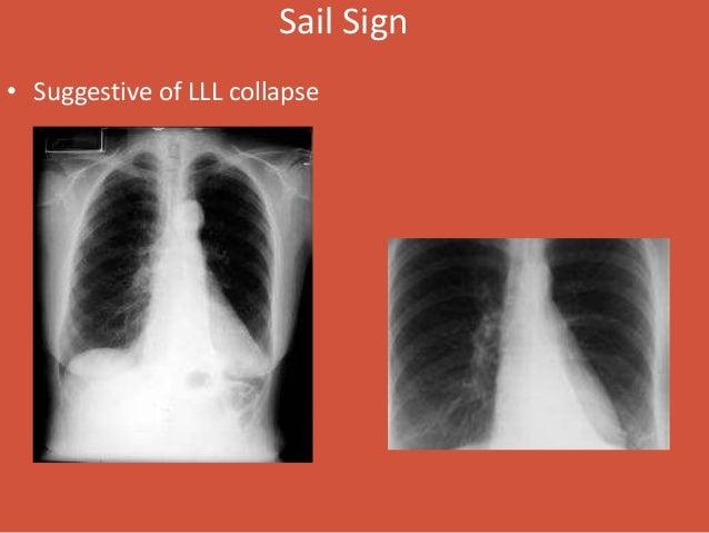 Normal Chest X Ray Vs Pneumonia Chest and Abdomen Radi...