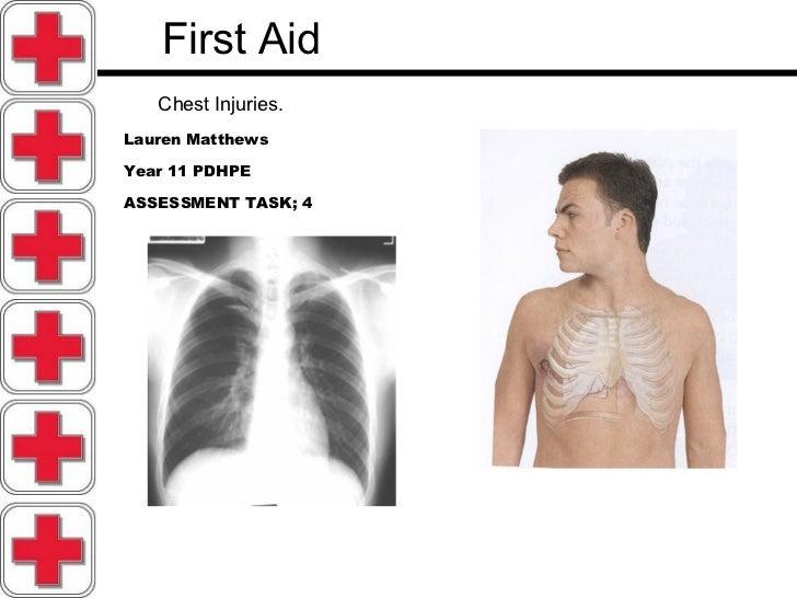 First Aid   Chest Injuries.   Lauren Matthews Year 11 PDHPE ASSESSMENT TASK; 4