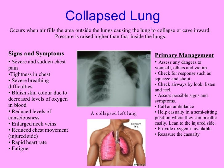how to fix a collapsed lung