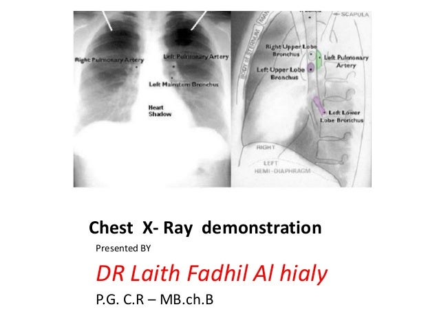 Chest X- Ray demonstration Presented BY  DR Laith Fadhil Al hialy P.G. C.R – MB.ch.B