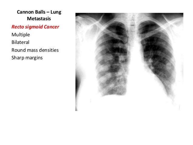 steroids pulmonary edema