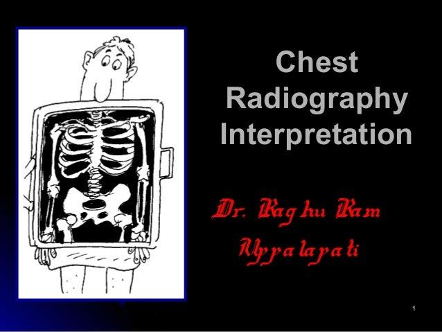 11 ChestChest RadiographyRadiography InterpretationInterpretation Dr. Raghu RamDr. Raghu Ram UppalapatiUppalapati