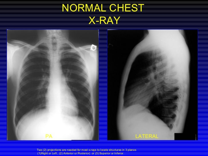 Normal Chest X Ray Vs Pneumonia Chest Xray