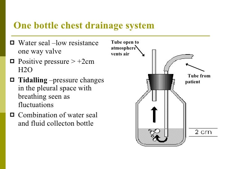 underwater seal drainage tube management Nurses' responsibilities when managing a chest drain  if bubbling is observed  in the underwater seal drain, the chest tube should never be clamped.