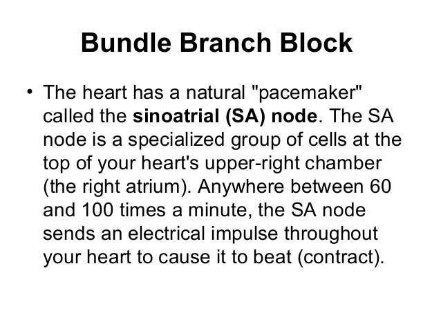 Natural Treatment For Right Bundle Branch Block