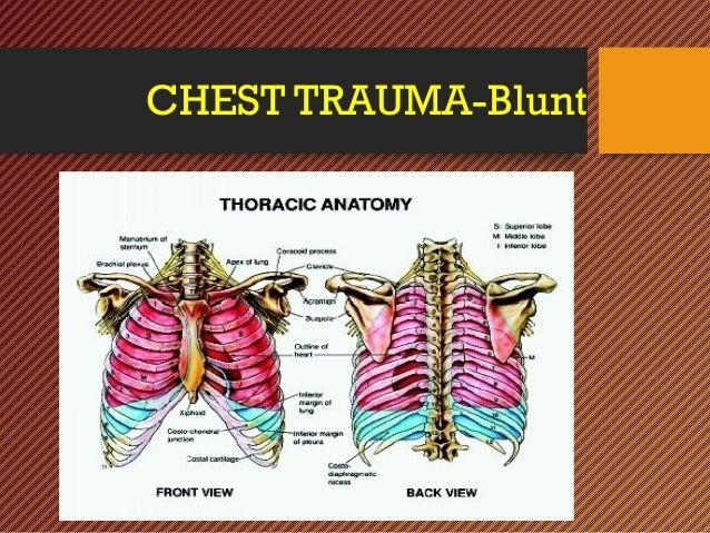 CHEST INJURY- BLUNT- Trauma Surgery Slide 3