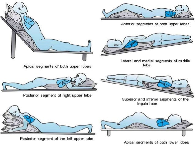 Chest Physiotherapy In Icu