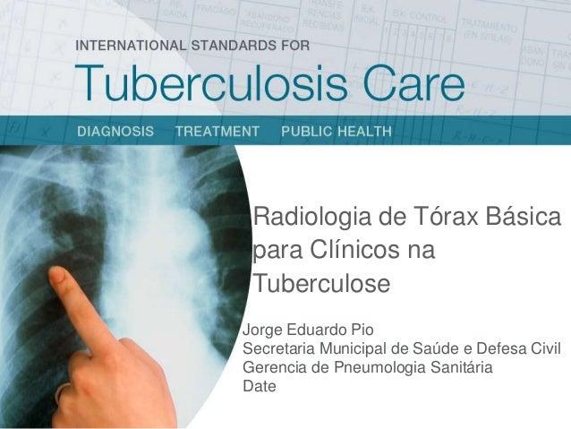 Radiologia de Tórax Básica para Clínicos na Tuberculose Jorge Eduardo Pio Secretaria Municipal de Saúde e Defesa Civil Ger...