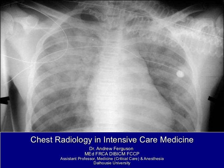Chest Radiology in Intensive Care Medicine Dr. Andrew Ferguson  MEd FRCA DIBICM FCCP Assistant Professor, Medicine (Critic...
