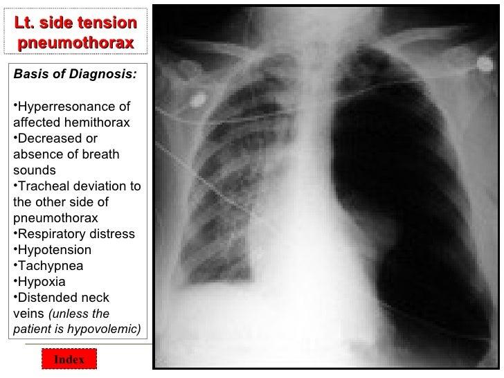 Chest surgical pathology &x rays