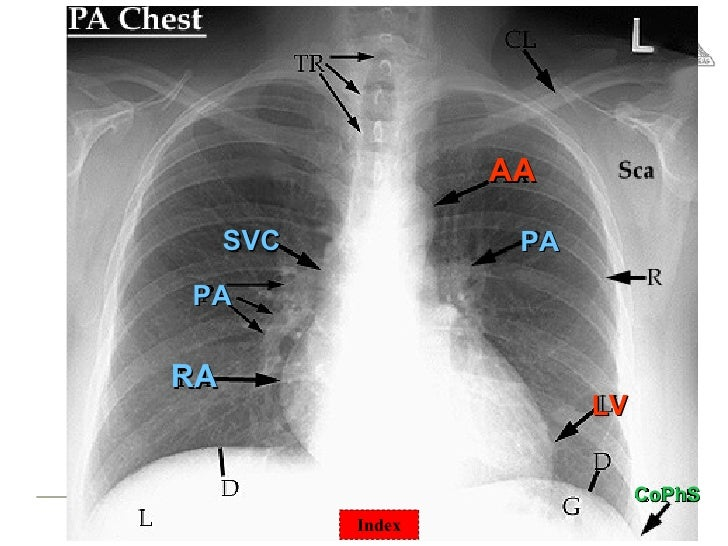 chest surgical pathology ampx rays