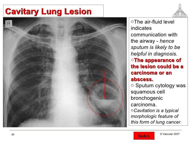 Chest Surgical Pathology X Rays