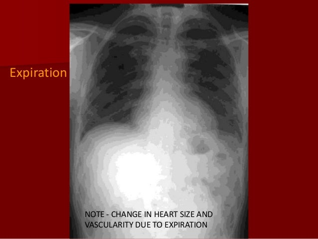 Expiration  NOTE - CHANGE IN HEART SIZE AND VASCULARITY DUE TO EXPIRATION