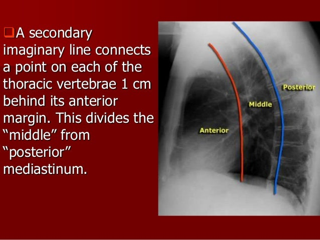 MEDIASTINAL STRUCTURES The hila are made up of the main pulmonary arteries and major Bronchi -The left hilum is higher tha...