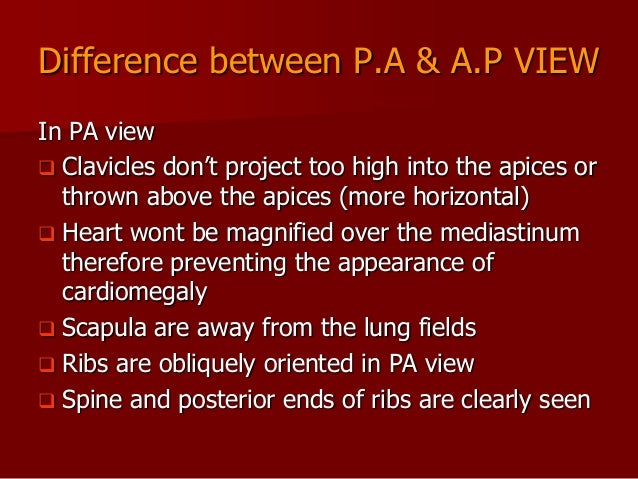 Difference between P.A & A.P VIEW In PA view  Clavicles don't project too high into the apices or thrown above the apices...