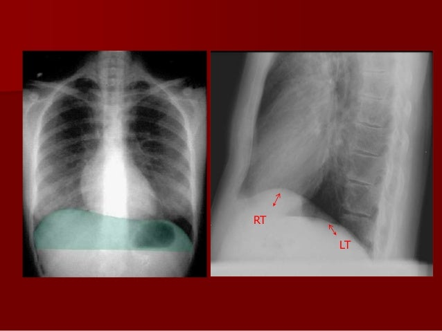 Significance of different views Anteroposterior view   It is useful in differentiating free and loculated pleural fluid  ...