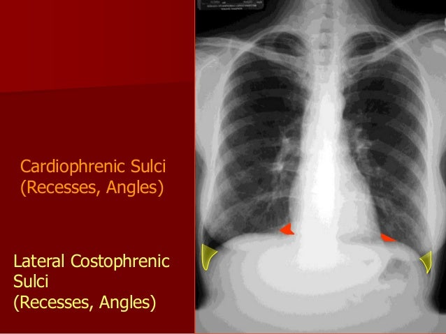 OBLIQUE VIEW It is helpful in localizing a lesion , in visualizing its borders and in projecting it free of overlying str...