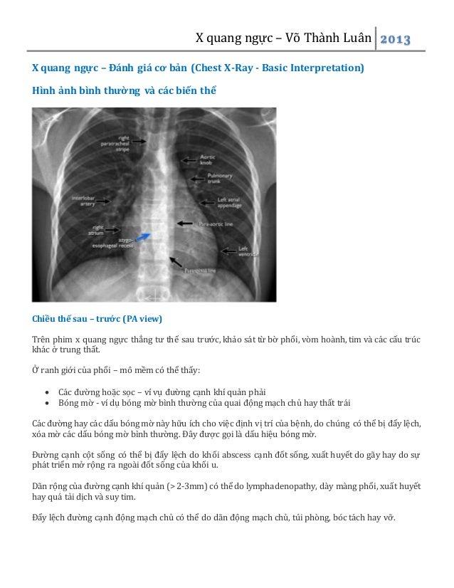 X quang ngực – Võ Thành Luân 2013 X quang ngực – Đánh giá cơ bản (Chest X-Ray - Basic Interpretation) Hình ảnh bình thường...