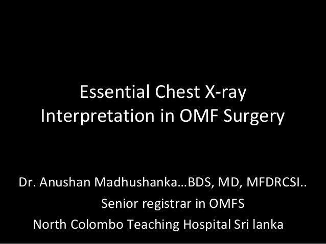 Essential Chest X-ray Interpretation in OMF Surgery Dr. Anushan Madhushanka…BDS, MD, MFDRCSI.. Senior registrar in OMFS No...