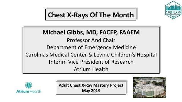 Chest X-Rays Of The Month Michael Gibbs, MD, FACEP, FAAEM Professor And Chair Department of Emergency Medicine Carolinas M...