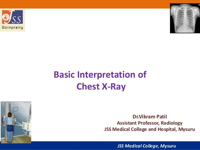 JSS Medical College, Mysuru Basic Interpretation of Chest X-Ray Dr.Vikram Patil Assistant Professor, Radiology JSS Medical...