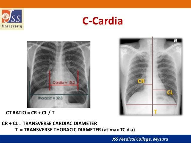 chest x ray basic interpretation