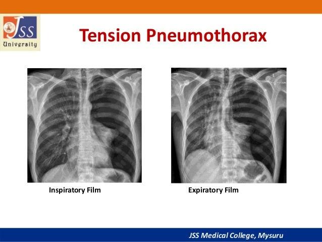Tension Pneumothorax X Ray