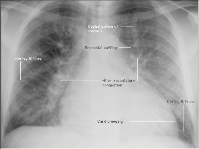 Image Result For Symptoms Of Lung Cancer Canadian Cancer Society