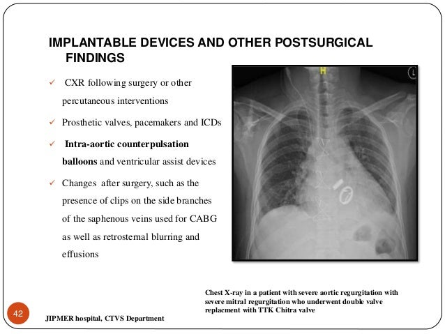 Chest xray for evaluation of cardiovascular system