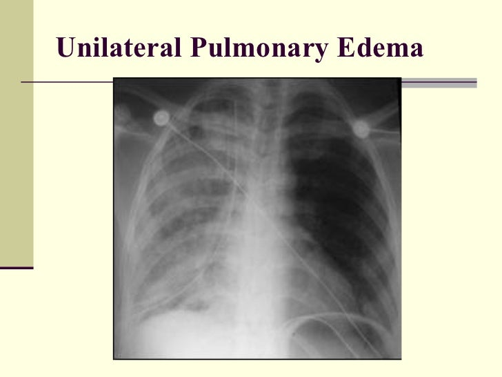 Pulmonary Edema Vs Pleural Effusion Dog