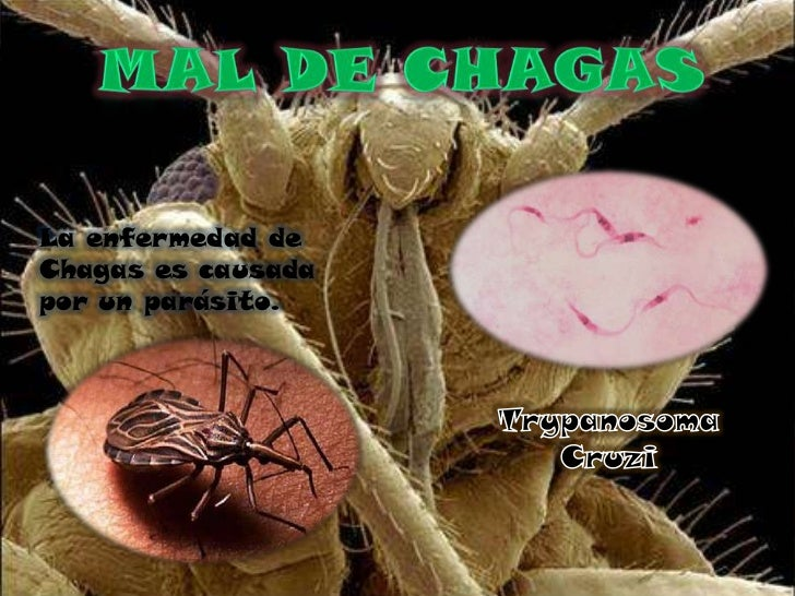 La enfermedad deChagas es causadapor un parásito.