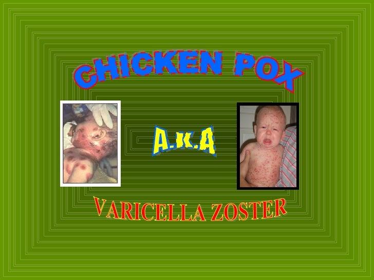 CHICKEN POX A.K.A VARICELLA ZOSTER