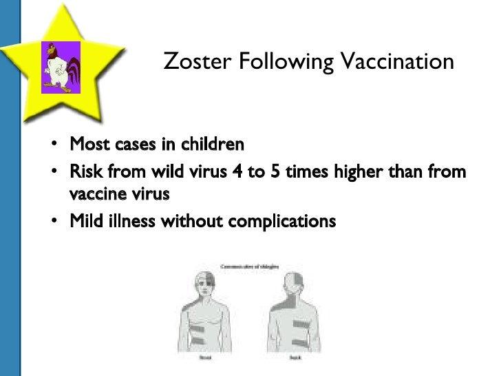 Chickenpox Presentation Varicella Vaccine Rash At Injection Site