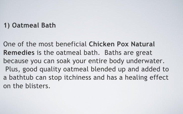 Natural Remedies Chicken Pox
