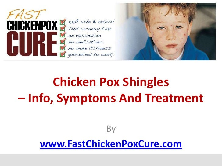 Chicken Pox Shingles– Info, Symptoms And Treatment               By   www.FastChickenPoxCure.com