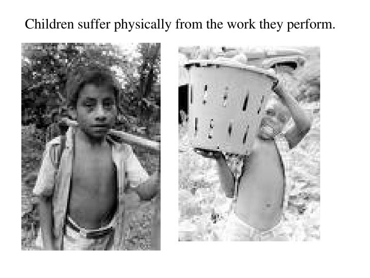 Children suffer physically from the work they perform.