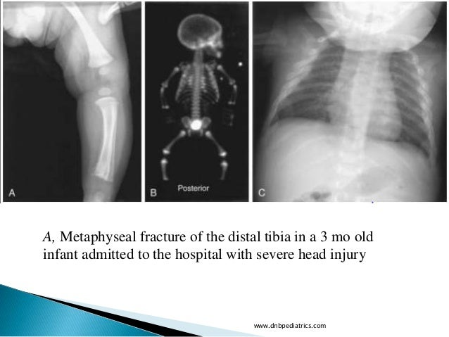 Abscessation Osteomyelitis And Fracture Of The Sternum In: Child Abuse