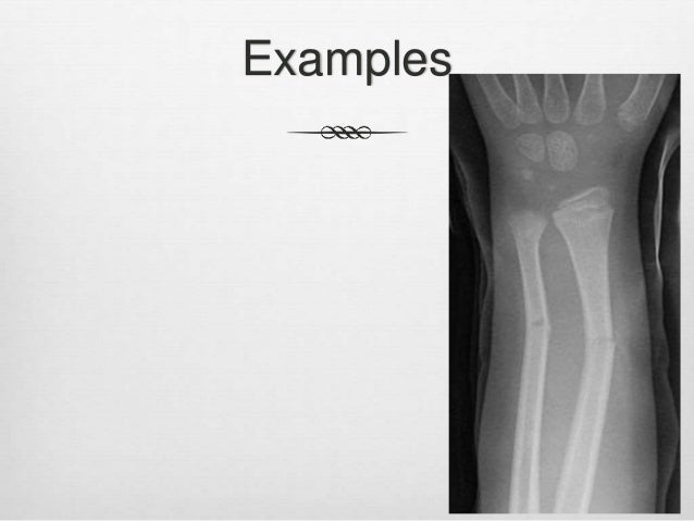 child abuse and greenstick fracture, Human Body