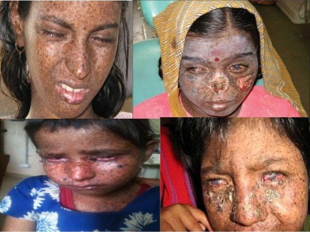 xeroderma pigmentosum di indonesia
