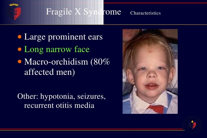 Fragile x syndrome facial