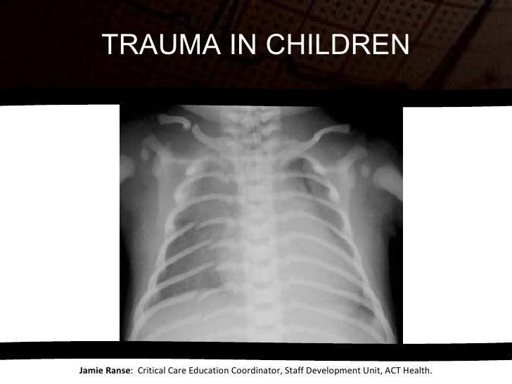TRAUMA IN CHILDREN Jamie Ranse :  Critical Care Education Coordinator, Staff Development Unit, ACT Health.