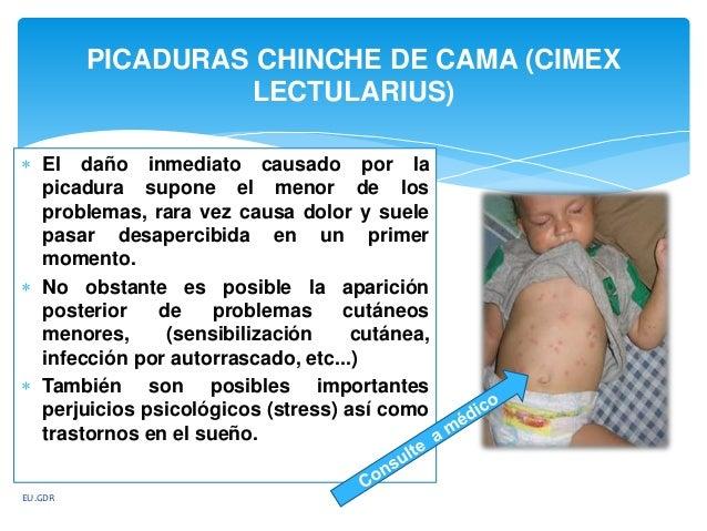 Chinche de cama cimex lectularius 3 for Como eliminar chinches de cama naturalmente
