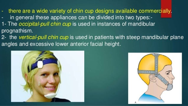 Chin cup for treatment of growing class III patient