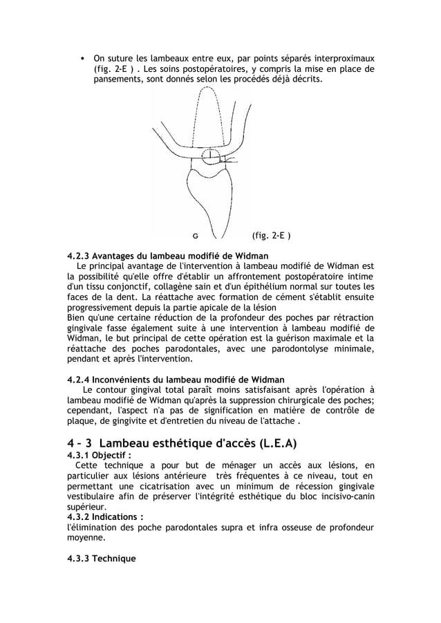 • On suture les lambeaux entre eux, par points séparés interproximaux (fig. 2-E ) . Les soins postopératoires, y compris l...