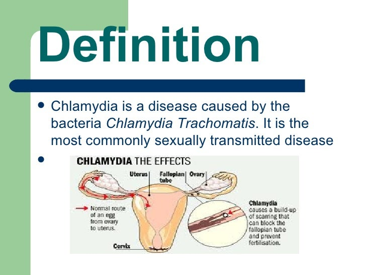 a discussion on the disease state of chlamydia Focusing primarily on syphilis, gonorrhea, and chlamydia, the most commonly reported stds the following information, as depicted in the narrative, graphs, and tables, details the increasing number of stds affecting our state.