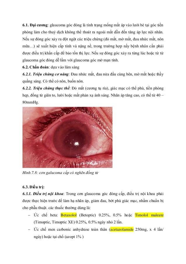 6.1. Đại cƣơng: glaucoma góc đóng là tình trạng mống mắt áp vào lưới bè tại góc tiền phòng làm cho thuỷ dịch không thể tho...